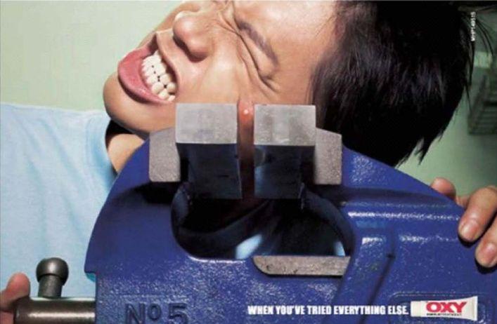 acne.jpg